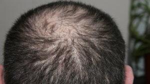 Ting du må vite om hårtransplantasjon